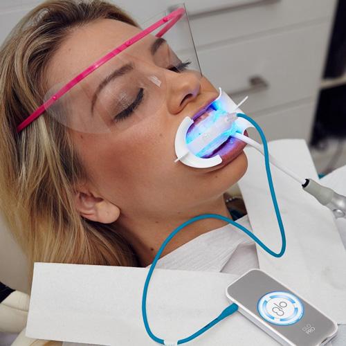 chairside-GLO-teeth-whitening-procedure